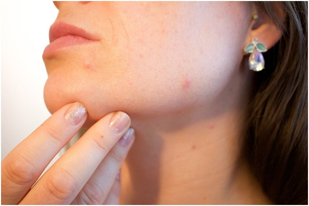 How to Identify Warts, Moles & Skin Tags